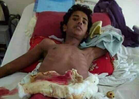 صورة للطفل محمد حسن سلامة أحد مصابين الاستهداف العشوائي لقوات الجيش والشرطة المصرية